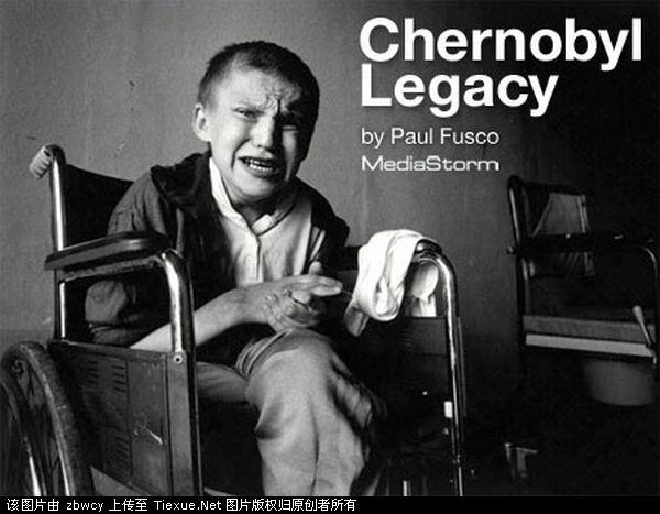 切尔诺尔贝利核污染带来的伤害图片