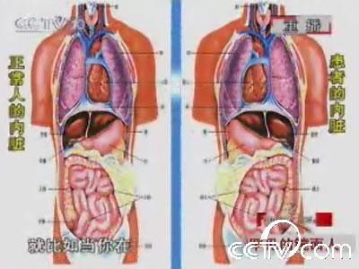 肝脏的位置 肝脏的位置隐隐作痛 肝脏的位置真人图图片
