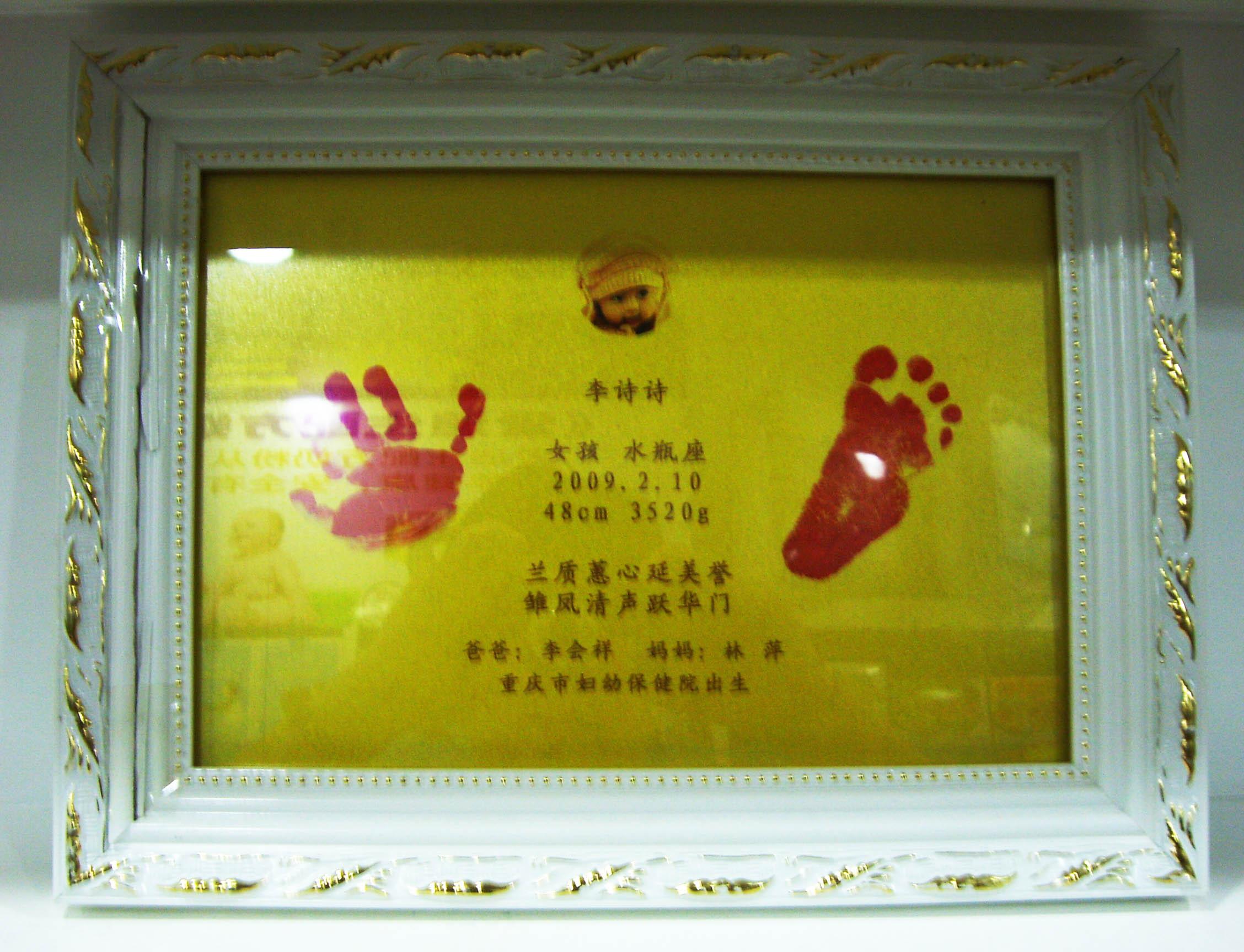 宝宝脚掌图片_世界最轻婴儿体重仅04斤脚掌如同成年人拇指