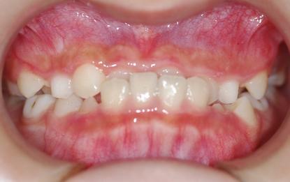 排列不齐的牙齿的矫正由海口的